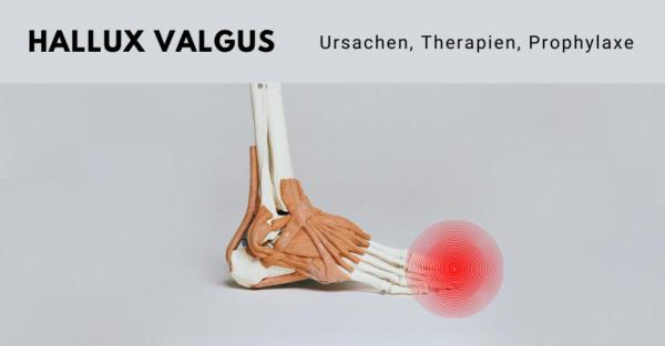 Beim Hallux Valgus handelt es sich um eine Fehlstellung im Bereich der Großzehe.