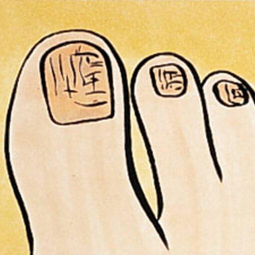 Füße,Fußgesundheit,Nagelpilz